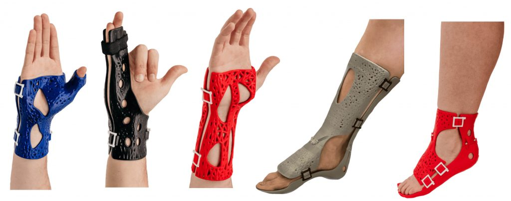 The Advantages of a 3D Printed Cast (Orthopedic Casts)